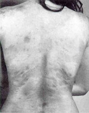 This photograph shows generalized morphea on the t