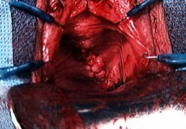 The urethral diverticulum is closed in 3 layers wi