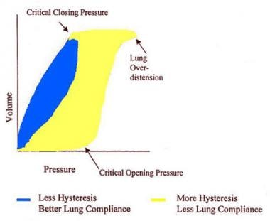 Typical pressure-volume curve may provide informat