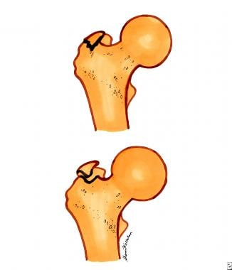 Trochanteric fractures. Top diagram is a nondispla