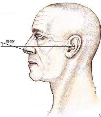 Rhinoplasty, tip ptosis. Nasal tip rotation can be