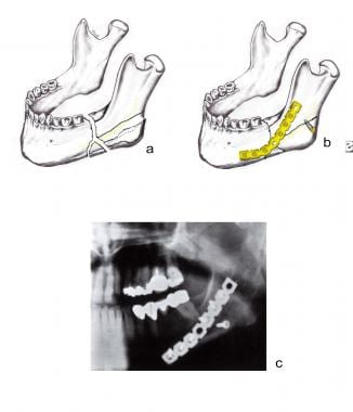 Comminuted angular fracture of the left mandible.