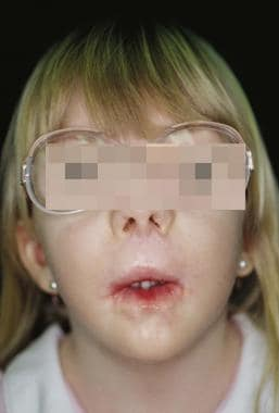 Child with Freeman-Sheldon syndrome.