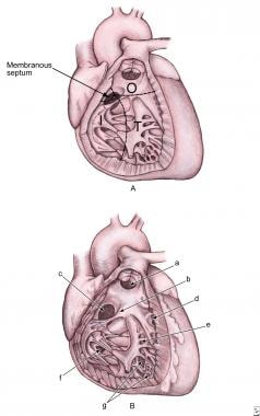 A: Image shows a ventricular septum viewed from th