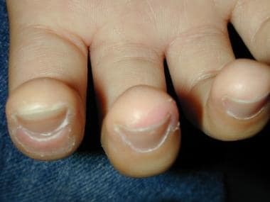 Peeling and erythema of the fingertips.