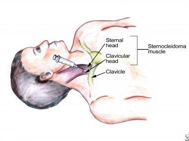 Percutaneous internal jugular venous access. Anato