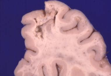 Toxoplasma gondii abscesses are seen on this brain