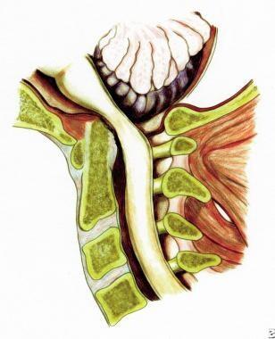 Rheumatoid spondylitis. Depiction of superior migr