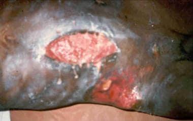 Enterocutaneous fistula with severe skin excoriati