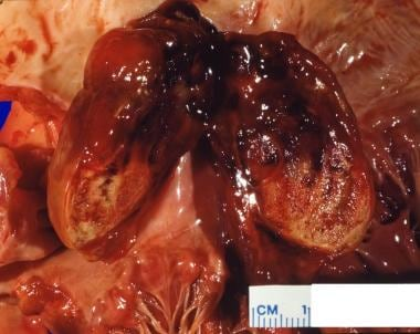 Photograph shows sizable myxoma arising in left at