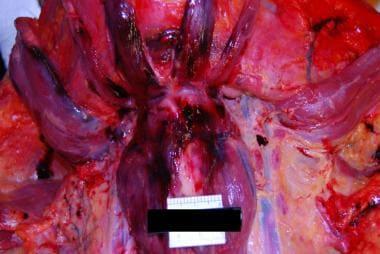 Anterior neck dissection demonstrating hemorrhage