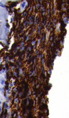 Most primary lymphomas of bone are B-cell in origi