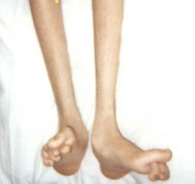 Foot deformities in 16-year-old boy with Charcot-M