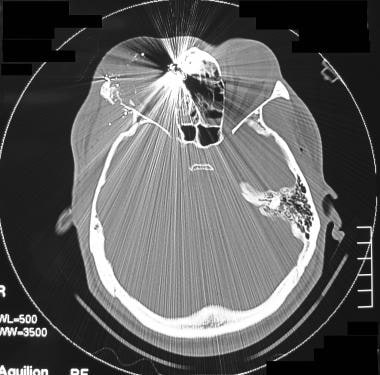 Computed tomography scan in a patient with a gunsh