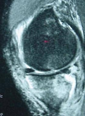 Severe medial contrecoup bone bruise of the poster