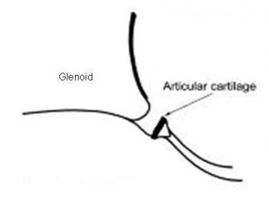 glenoid labrum injury mri  practice essentials
