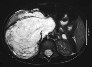 Multilocular cystic nephroma. Axial MRI shows a la