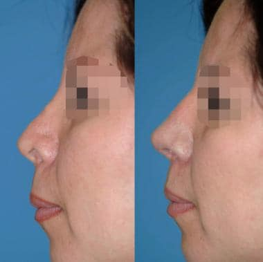 Before and 10 months after corrective surgery. Hig