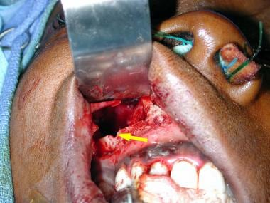 Endoscopic Management Of Facial Fractures Overview