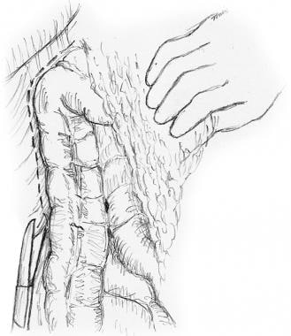 Incision along avascular line to mobilize right co