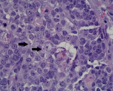 Trichilemmal carcinoma cells have large, lightly s