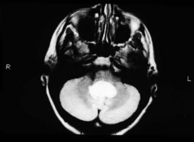 MRI, T2-weighted image, axial view, showing mixed