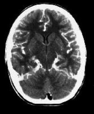 CT scan of a subdural empyema in the left temporal