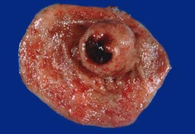 Gastric stromal tumor: Gross specimen following pa