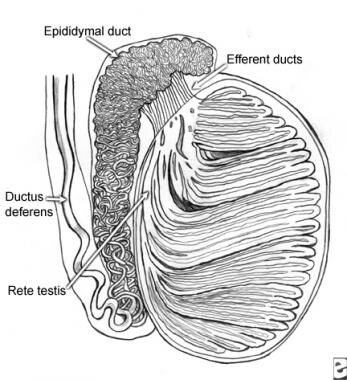 A sagittal section of the testicle. Idiopathic obs