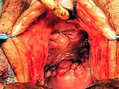 Supratrigonal vesicovaginal fistula. Vaginal wall