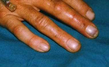 Grade 1 hydrofluoric (HF) acid burns of the finger