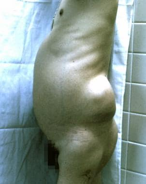 Photograph of a patient who presented with a slowl