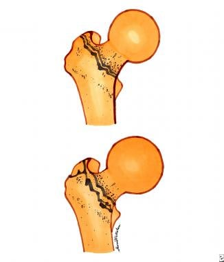 Intertrochanteric fractures. Top diagram is a sing
