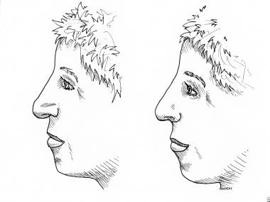 Rhinoplasty, tip ptosis. Nasal tip ptosis is a pro