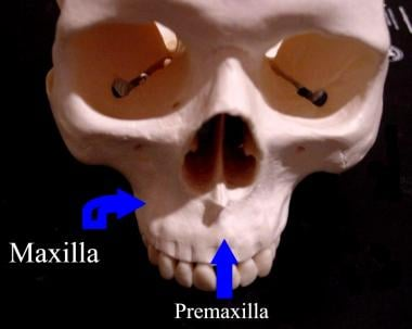 Skeleton of the head. Superiofrontal view showing