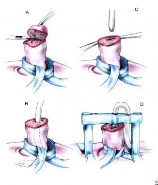 Umbilical vein catheterization. (A) Umbilical tape