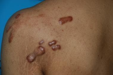 Papular lesions: Keloids developed from back acne.