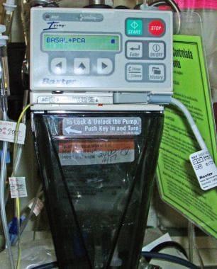 Epidural infusion pump.