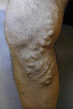Varicose vein before treatment with endovenous las