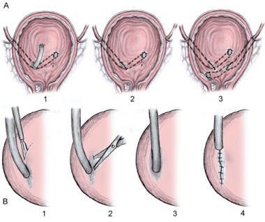 Cohen-cross trigonal reimplantation (top images) a