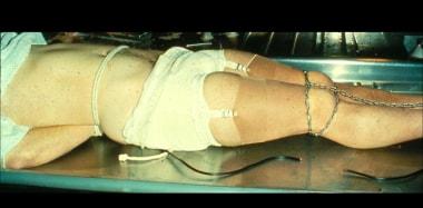 Autoerotic asphyxial death in a man who cross-dres