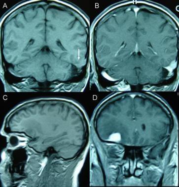 Malignant and multiple meningiomas. A 47-year-old