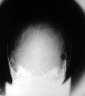 Plain radiograph in a patient with NF1 shows a lef