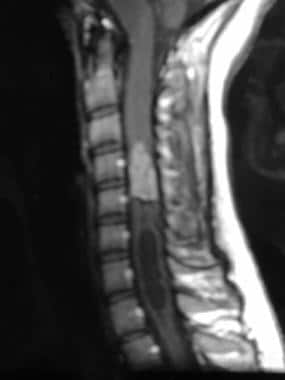 T1-weighted sagittal gadolinium-enhanced magnetic