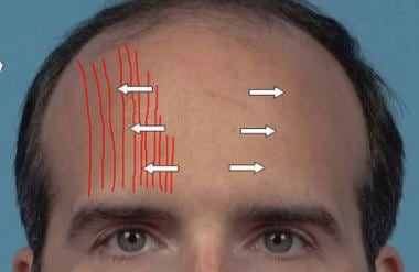 Frontalis muscle injections.