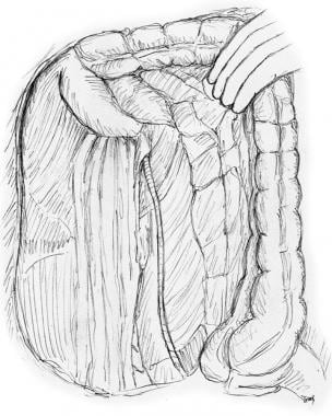 Entire right colon mobilized up to hepatic flexure