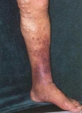 Patient with large tortuous varicose veins, high-v