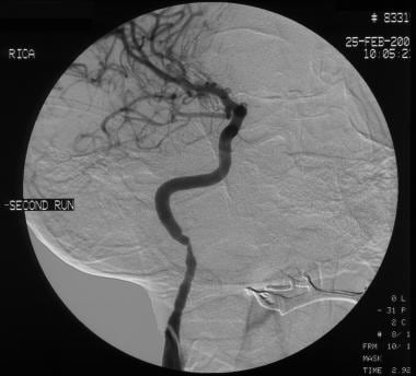 Digital subtraction angiogram of the right interna