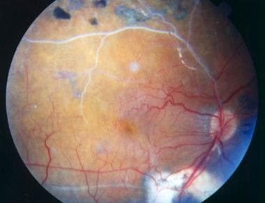Patient with a branch retinal vein occlusion compl