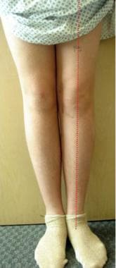 The patient's legs are straight 11 months followin